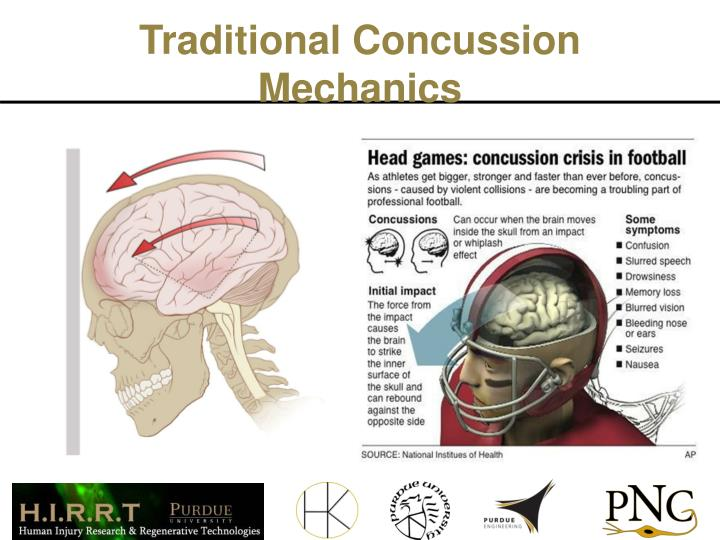 Traditional Concussion Mechanics