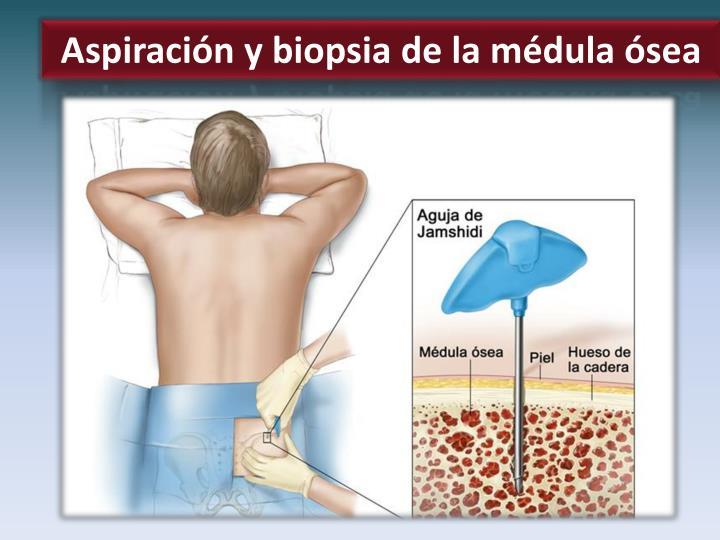 Aspiración y biopsia de la médula ósea