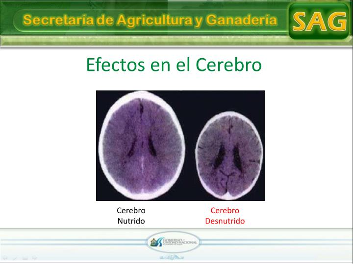 Efectos en el Cerebro