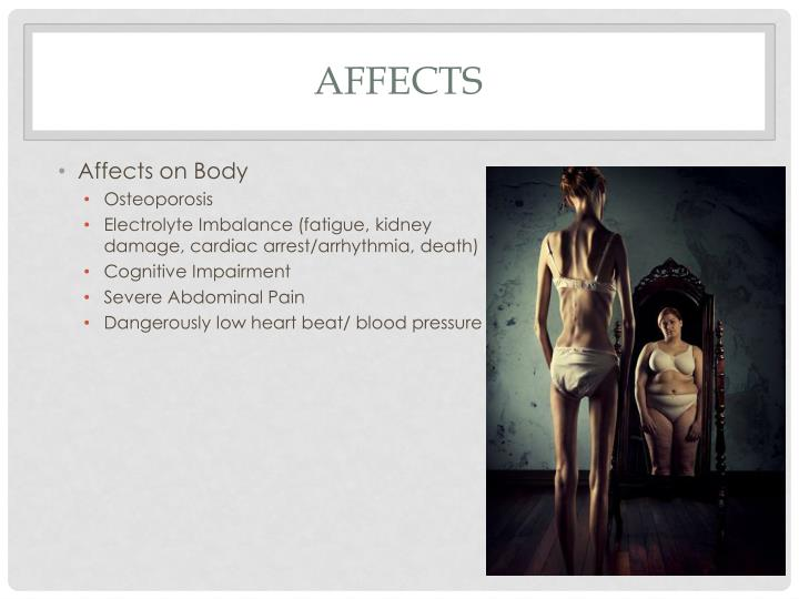 Affects