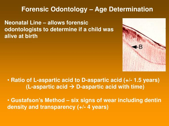 Forensic Odontology – Age Determination