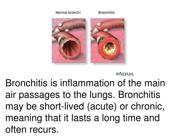 Bronchitis is inflammation of the main air passages to the lungs. Bronchitis may be short-lived (acute) or chronic, meaning that it lasts a long time and often recurs.