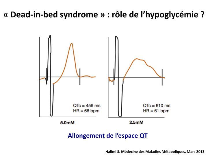 «Dead-in-bed syndrome» : rôle de l'hypoglycémie ?