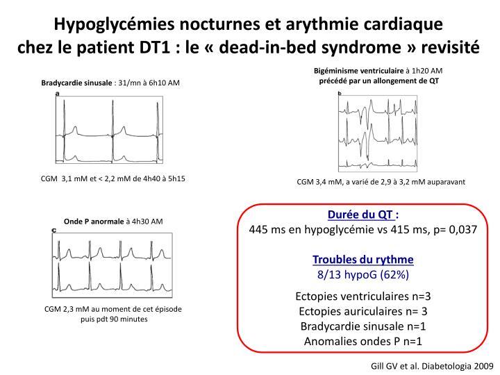Hypoglycémies nocturnes et arythmie cardiaque