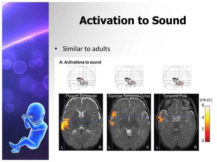 Activation to Sound