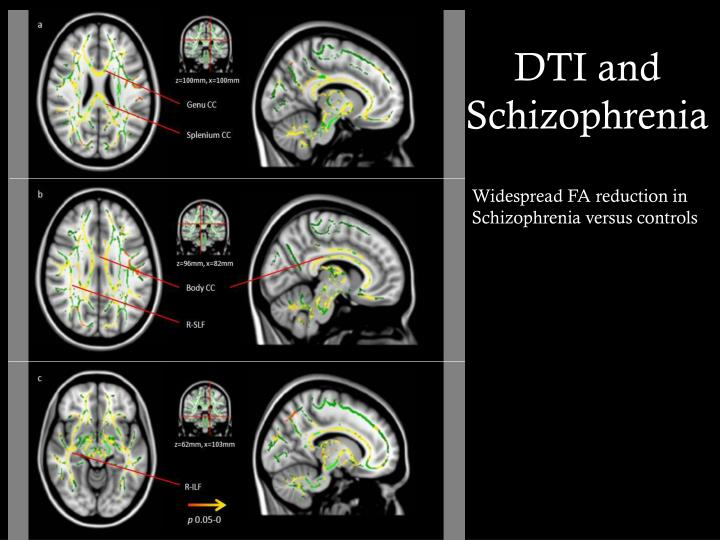 DTI and Schizophrenia
