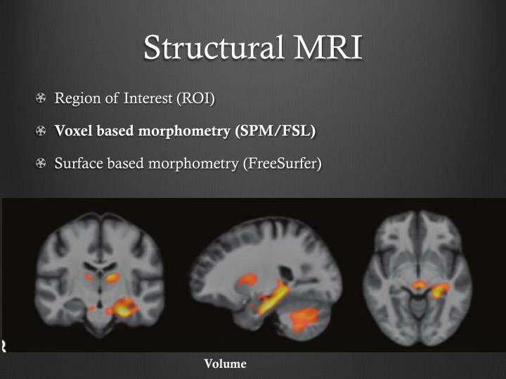 Structural MRI
