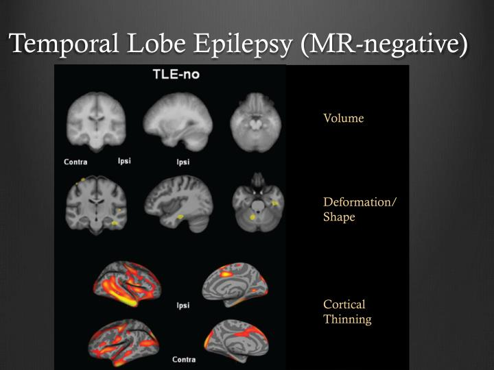 Temporal Lobe Epilepsy (MR-negative)