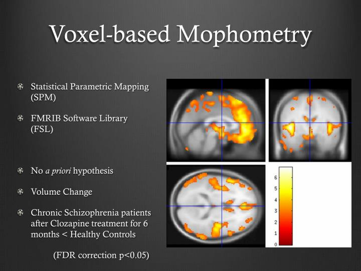 Voxel-based Mophometry