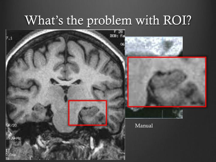 What's the problem with ROI?