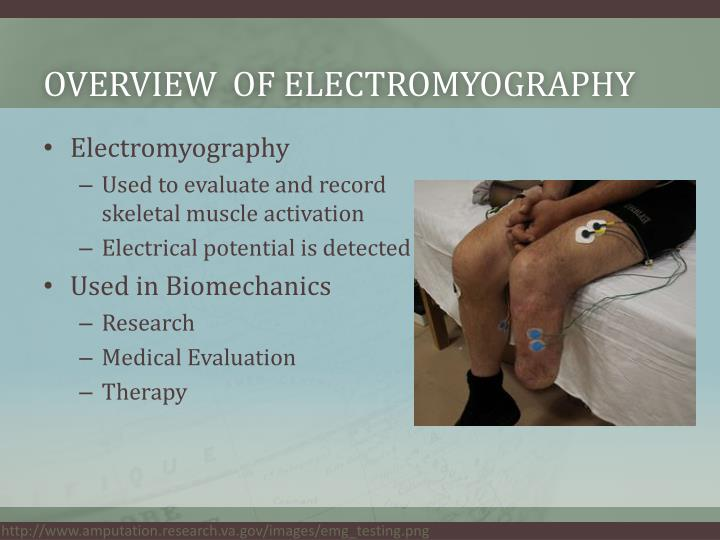 Overview of electromyography