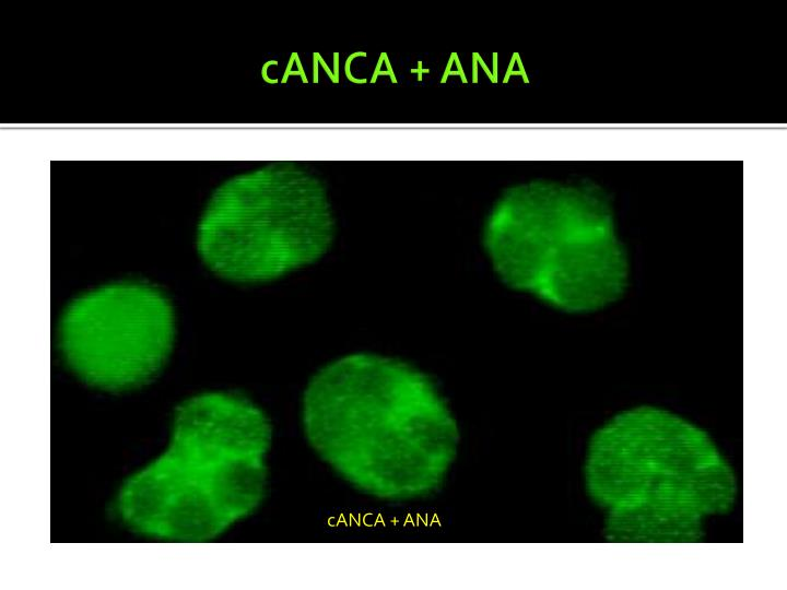 cANCA