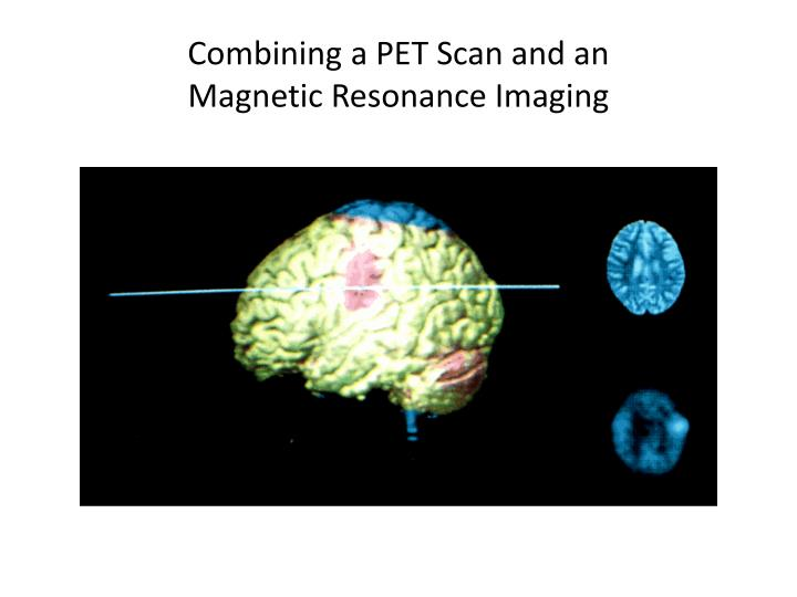 Combining a PET Scan and an