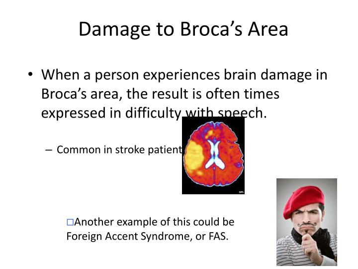 Damage to Broca's Area