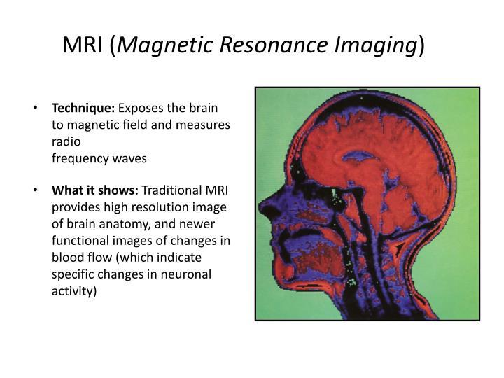 MRI (