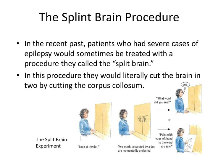 The Splint Brain Procedure