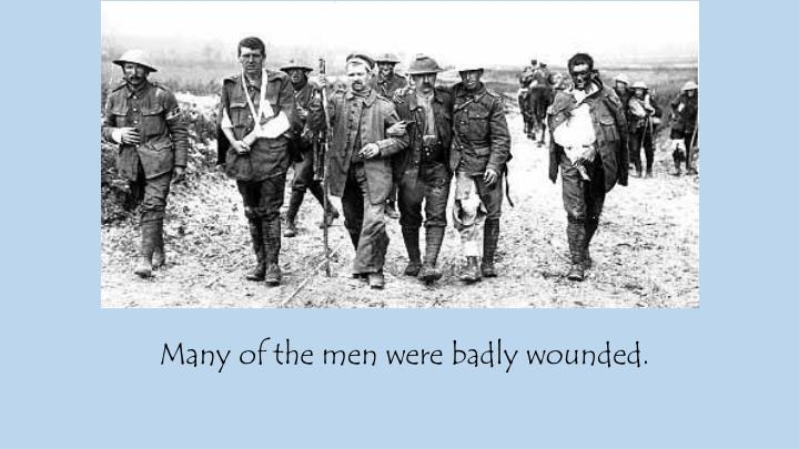 Many of the men were badly wounded.