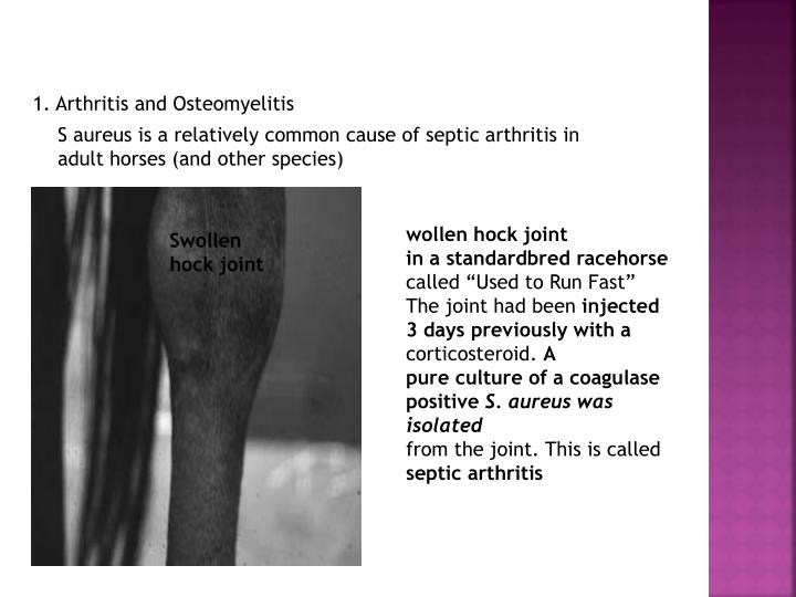 1. Arthritis and