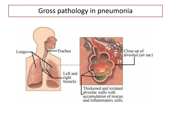 Gross pathology in pneumonia