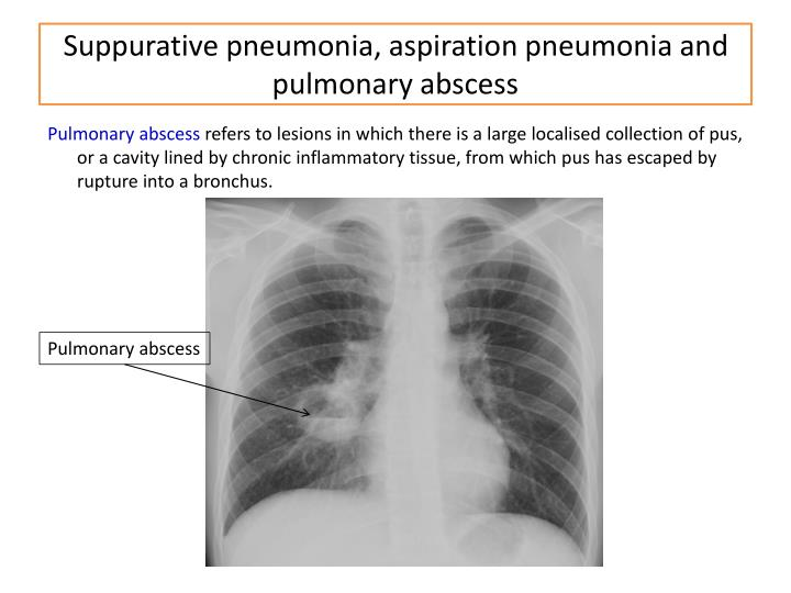 Suppurative pneumonia, aspiration pneumonia and pulmonary abscess