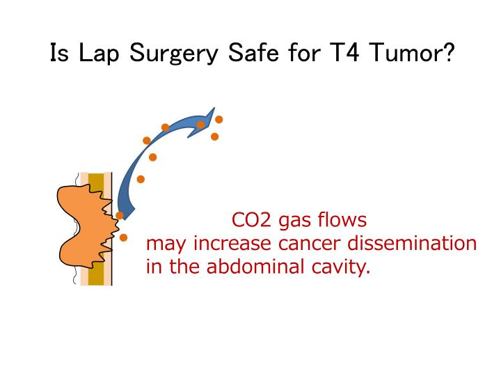 Is Lap Surgery Safe for T4 Tumor?