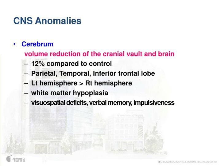 CNS Anomalies