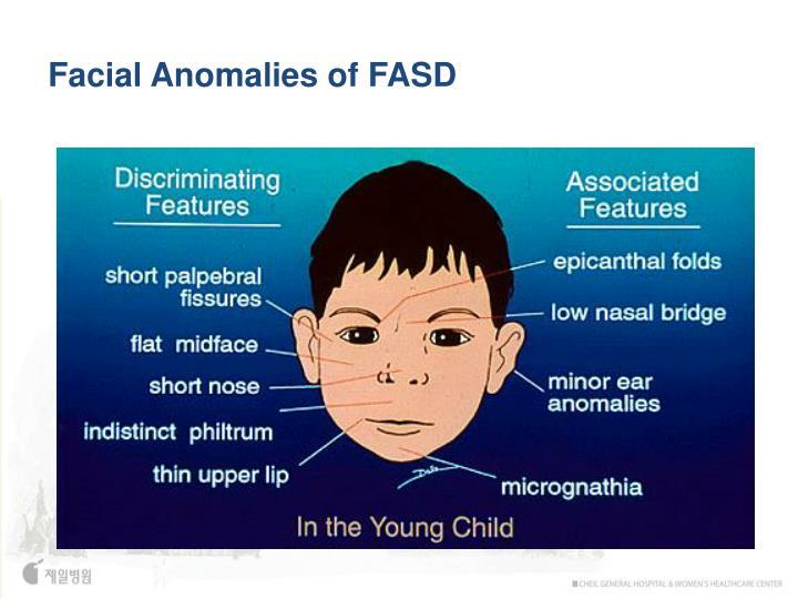 Facial Anomalies of FASD