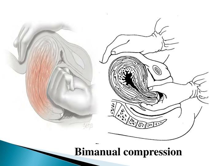 Bimanual compression