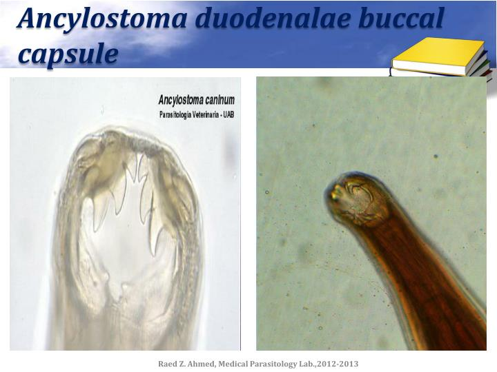 Ancylostoma duodenalae buccal capsule