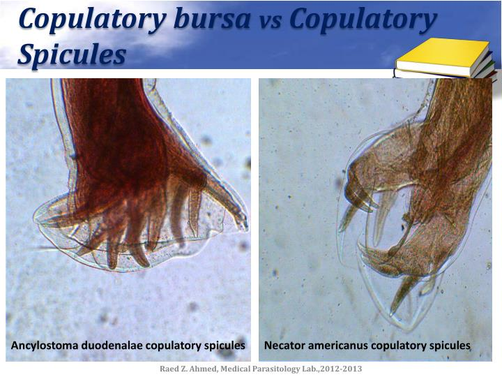 Copulatory bursa