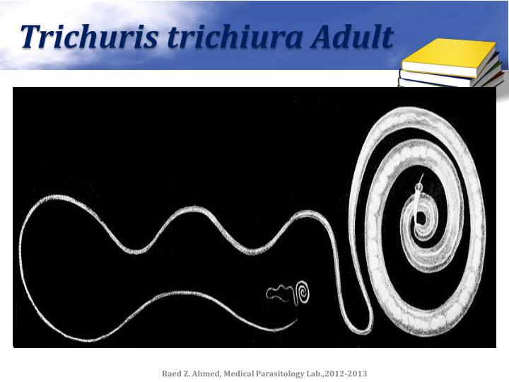 Trichuris trichiura Adult