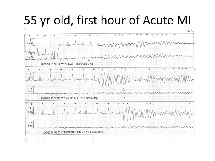 55 yr old, first hour of Acute MI