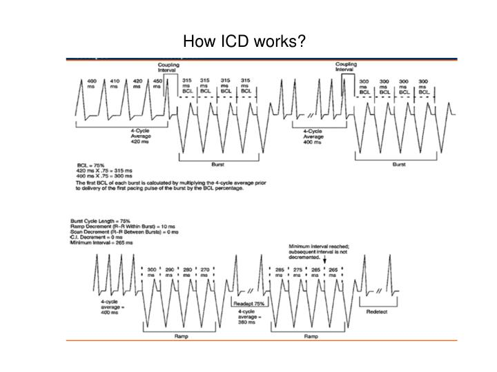 How ICD works?