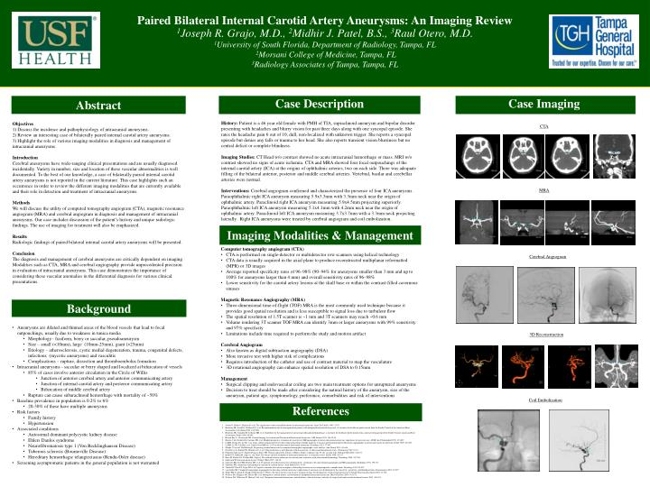 Paired Bilateral Internal Carotid Artery Aneurysms: An Imaging Review