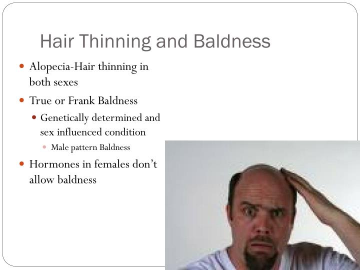 Hair Thinning and Baldness