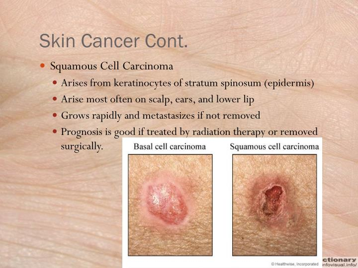 Skin Cancer Cont.
