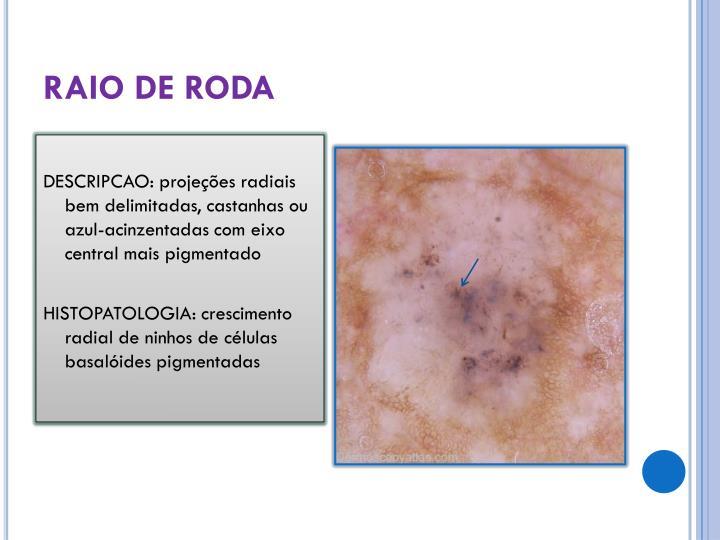 RAIO DE