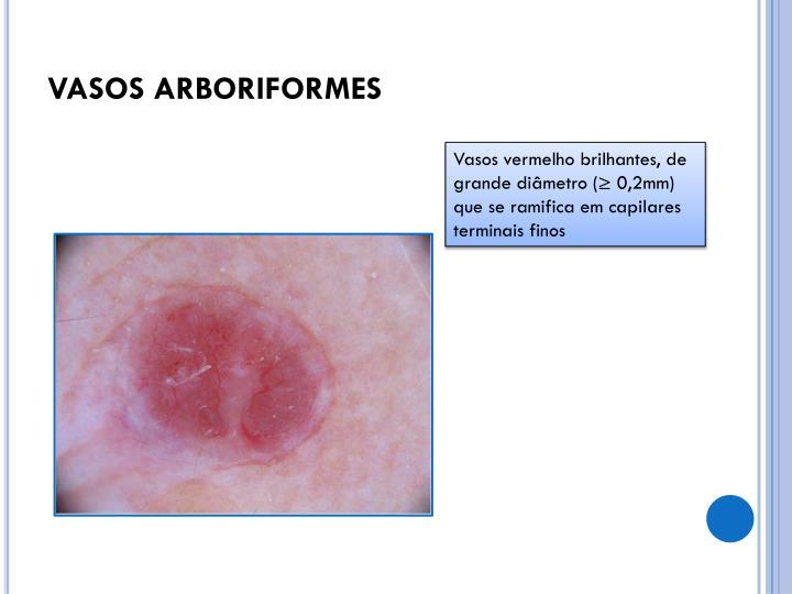 VASOS ARBORIFORMES