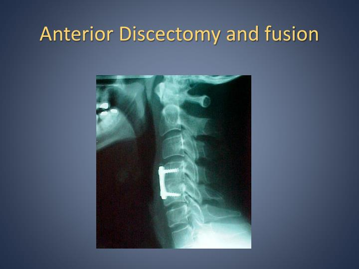 Anterior Discectomy and fusion