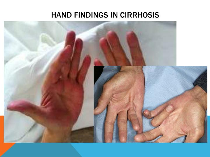 HAND FINDINGS IN CIRRHOSIS