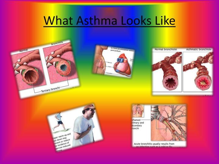 What Asthma Looks Like