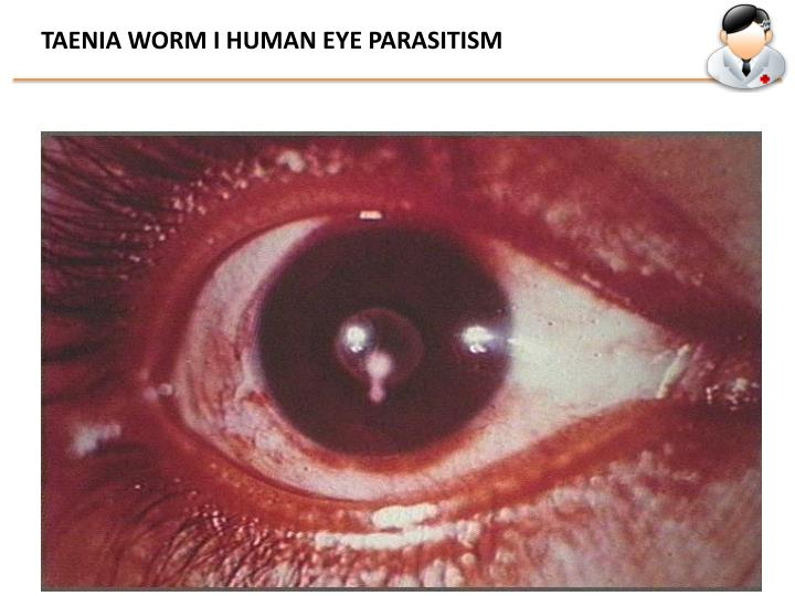 TAENIA WORM I HUMAN EYE PARASITISM
