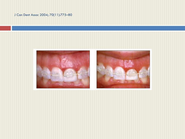 J Can Dent Assoc 2004; 70(11):775–80