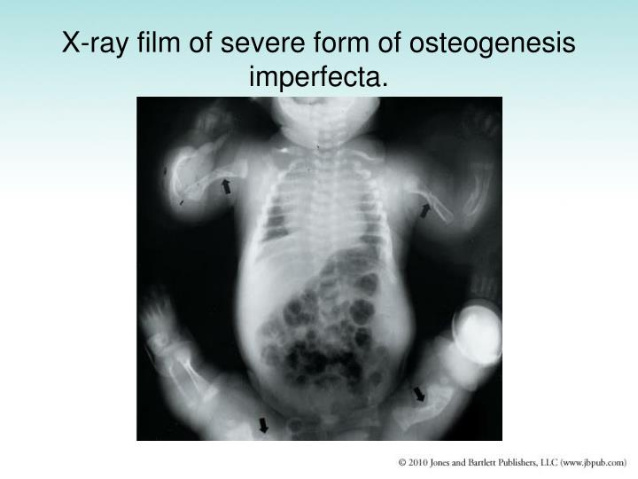X-ray film of severe form of osteogenesis imperfecta.
