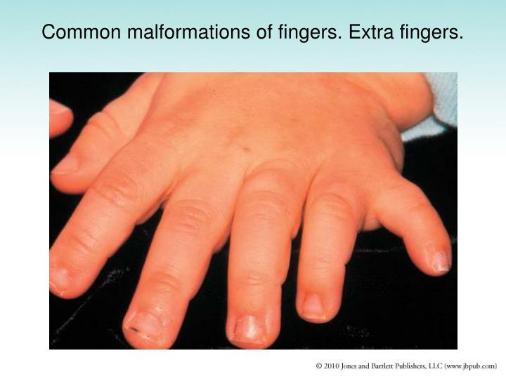 Common malformations of fingers. Extra fingers.