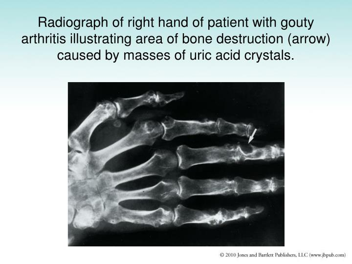 Radiograph of right hand of patient with gouty arthritis illustrating area of bone destruction (arrow) caused by masses of uric acid crystals.