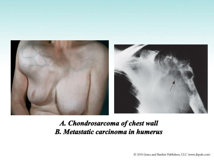 A. Chondrosarcoma of chest wall