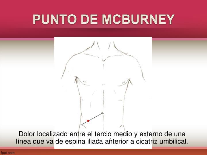 PUNTO DE MCBURNEY
