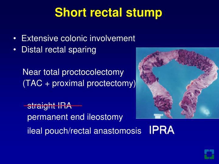 Short rectal