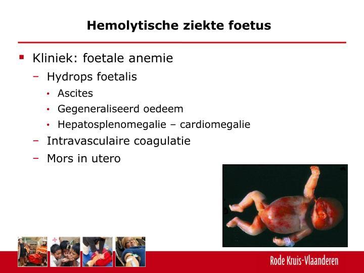 Hemolytische